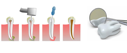 Root Canal Treatment in Vaishali